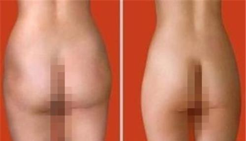 臀部吸脂前如何调养
