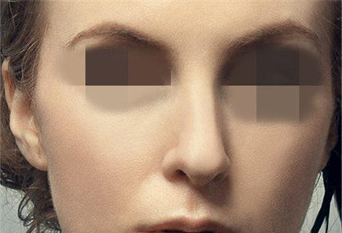 肋软骨隆鼻以及耳软骨隆鼻的程序