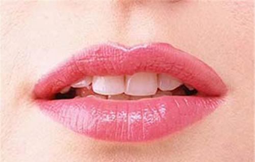 丰唇手术普遍多少人民币能实行一次呢