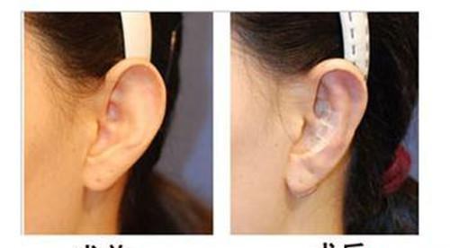 垂耳整形大约要花好多金钱呢