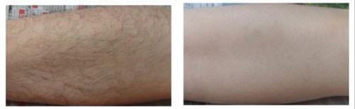 局部激光脱毛术是否会破坏流汗水功用