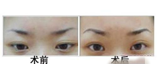 提眉手术的方法有几种