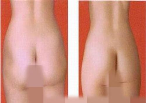 臀部抽脂手术之后怎么消除不良反应