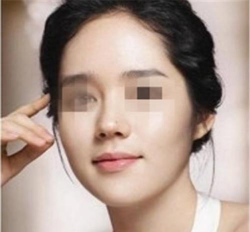 鼻部综合整形包括哪些个美容项目