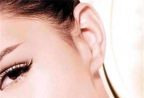 外耳横突畸形矫正术的价格究竟昂贵吗