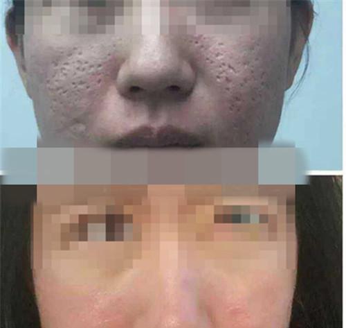 激光祛疤能彻底去除疤痕吗