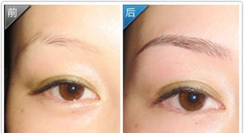 Y-V成形法眉毛整形成效如何手术前注意什么?