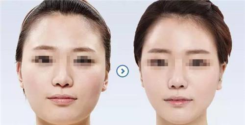 使用A型肉毒素针剂后会大小脸吗