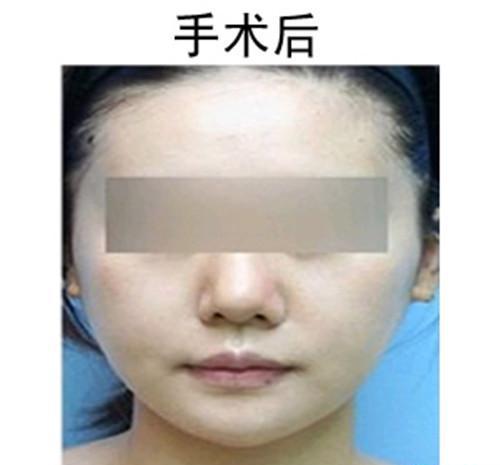 面部线雕有什么手术效果