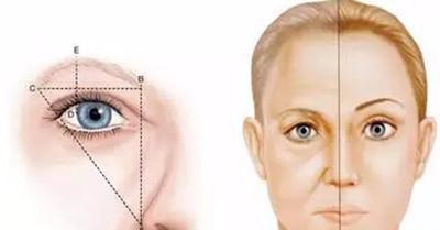 弄完提眉手术过后要在意哪些