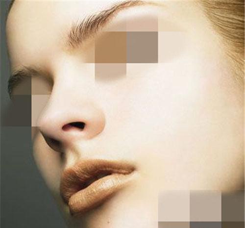 鼻综合整形手术可做哪些个手术项目