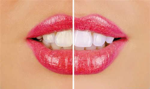 成人矫正牙齿大约要多少钱