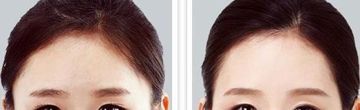 去眼角细纹的办法都有哪些