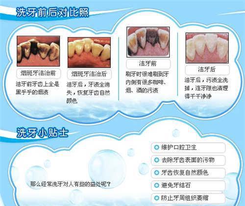 超声波洗牙需要多少钱