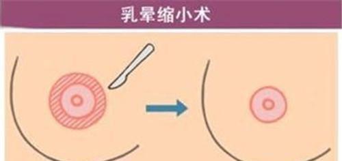 乳晕缩小术有哪些危害