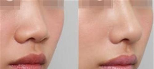 延长鼻小柱的材料有哪些