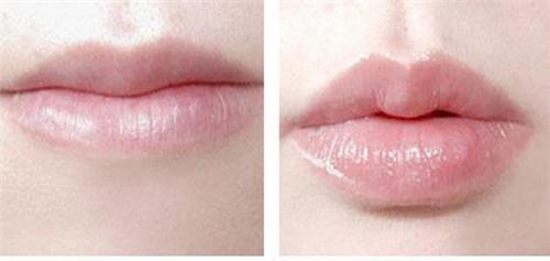 自体脂肪丰唇优势