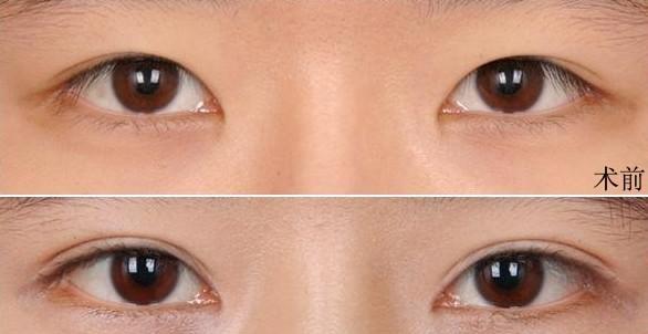 什么是切开法割双眼皮