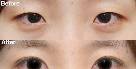割双眼皮后注意事项