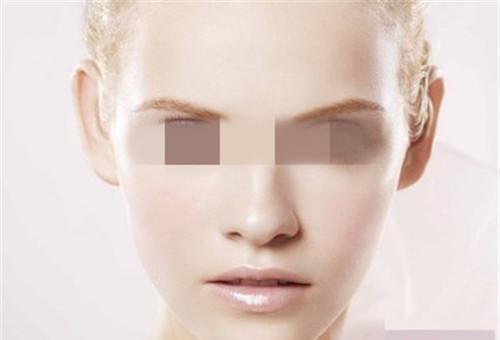 面颊部填充有哪些材料可以选择