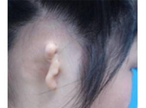 杯状耳矫正手术的价格到底高不高