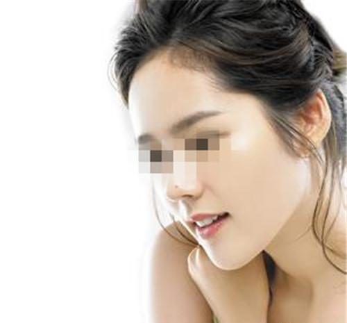 什么叫耳软骨鼻整形?