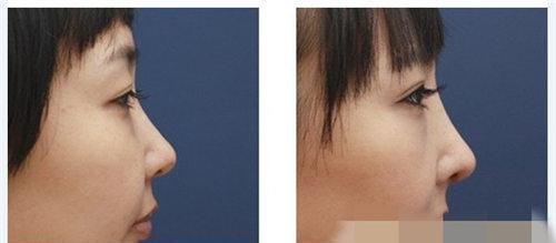 鼻综合整形术整形效果怎么样