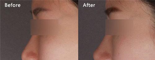 鼻综合整形手术有什么整形效果