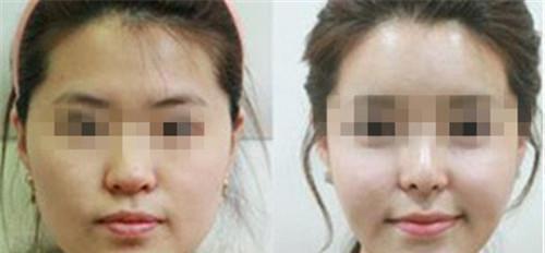 要怎样除掉脸蛋的雀斑所花费用具体多少RMB