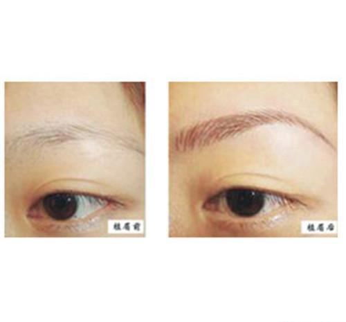 如何纠正眉形?Y-V成形法眉毛整形如何?