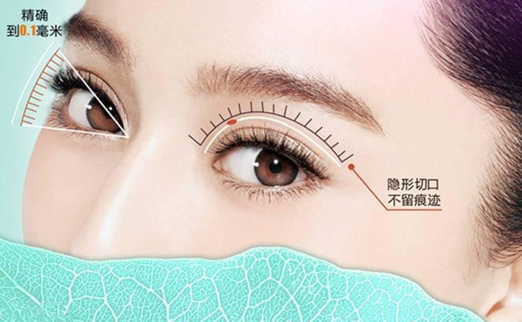双眼皮手术恢复时间有什么不同
