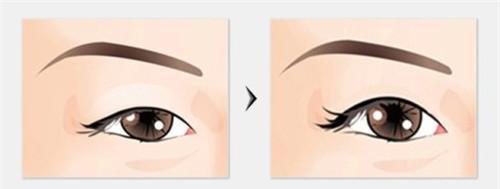 鼻尖矫正术的方法