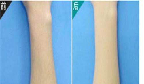 背部抽脂术时怎么样削弱不良反应