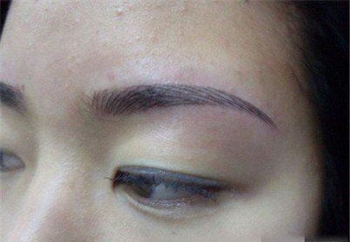 两边眉毛移植技术的价格尺度是需要多少