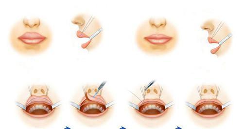 做继发兔唇治疗手术至少要花多少费用