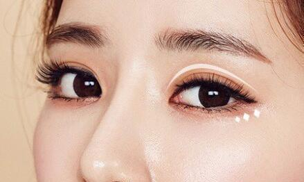 做韩式双眼皮需要多少钱