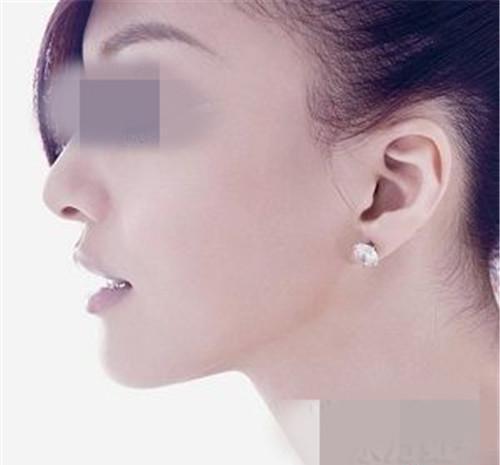 垂耳矫正术的价位究竟高吗