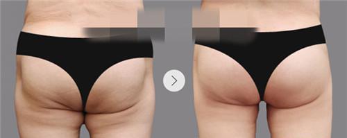 怎么有用的瘦臀抽脂术安全不?