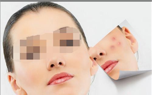 激光修复疤痕之后怎么去护理