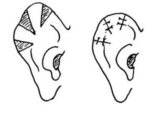 卷曲耳矫正手术大致需要花销好多费用呢