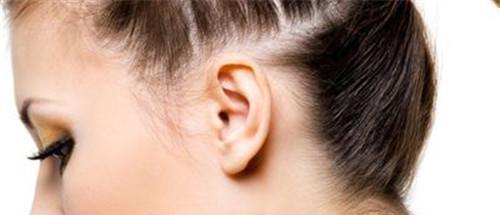 垂耳矫正术的费用详解