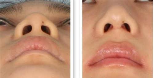 鼻综合整形手术整形效果如何