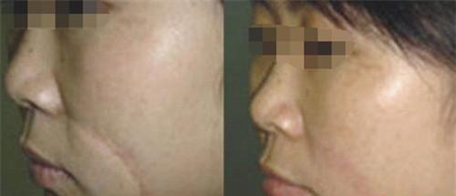 激光修复疤痕怎样去护理好些