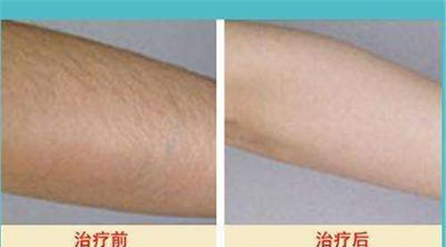 做激光脱毛美容方法手术以后还要重新生长出汗毛吗