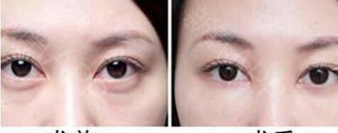 无痕祛眼袋的方法有哪些