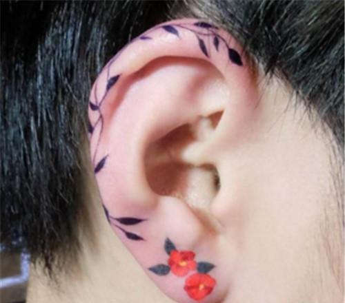 招风耳矫治手术多少钱