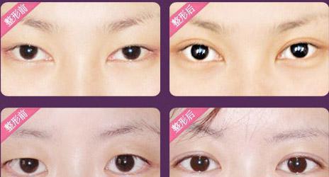 全切双眼皮术后如何护理