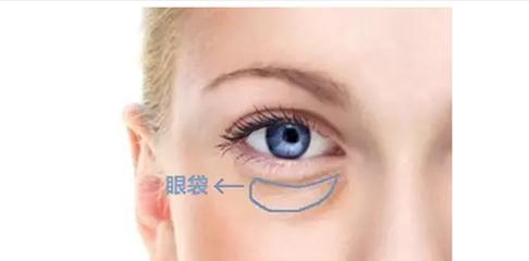 吸脂去眼袋是否会有副作用