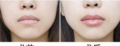 丰唇手术后遗症