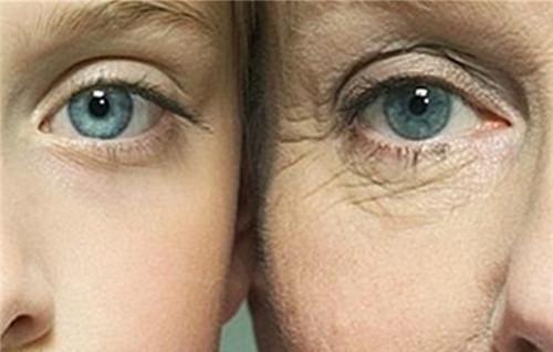 有效除去黑眼圈的方法